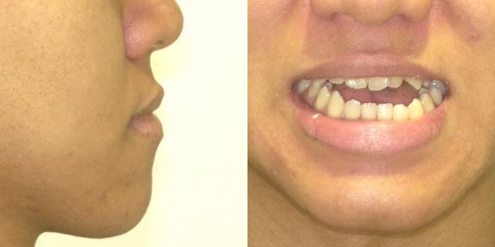 サージェリーファースト・アプローチの優れた治療効果 術前の顔貌写真