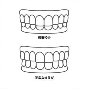 過蓋咬合と正常な歯並びのイラスト