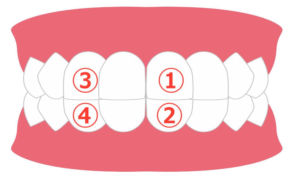 対合歯の画像