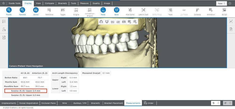 ブログ画像1上下の歯の幅径